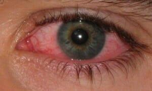 Heeft u een vuiltje in uw oog?