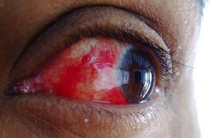 bloedinkje in oog