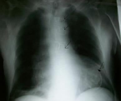 Ventriculair aneurysma-ruptuur